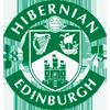 Hibernian sub-20